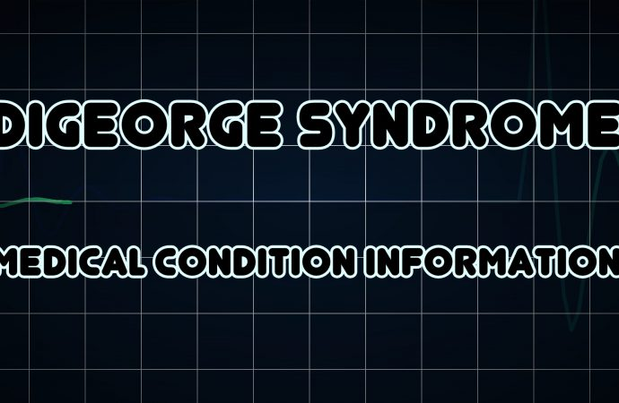 DiGeorge Syndrome affects one in every four thousand Births