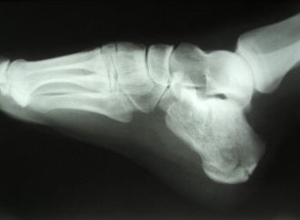 Individual with Diabetes have up to 6 times more risk of Fragility Fracture
