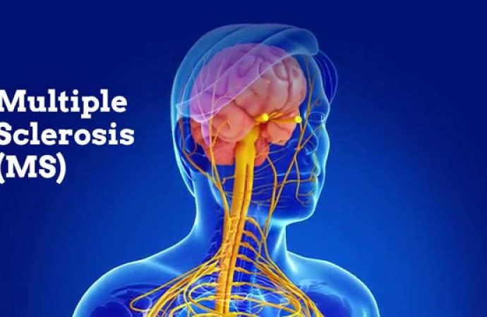 Linking Diet and Intestinal Flora with Multiple Sclerosis