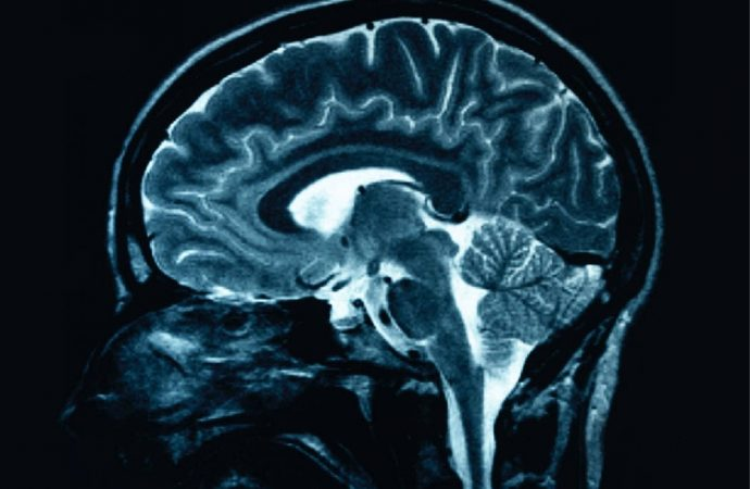 Study Shows how the Brain Removes Dead Cells