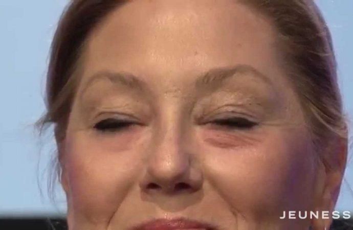 The Gene that gives you Wrinkles Prematurely