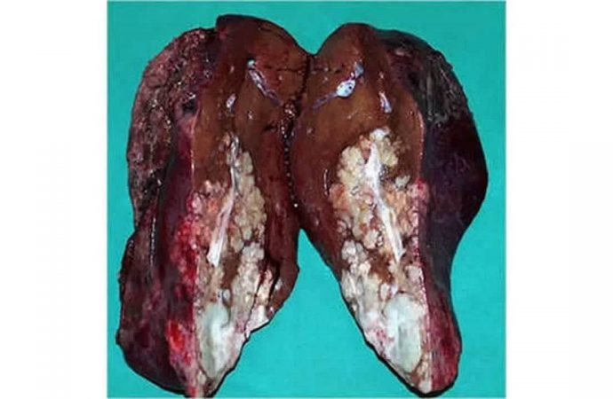 Low Levels of Selenium are associated with the Development of Liver Cancer